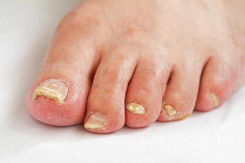 Podología uña engrosada